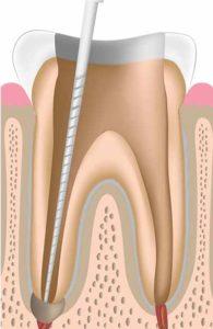 opracowywanie kanałów zębowych